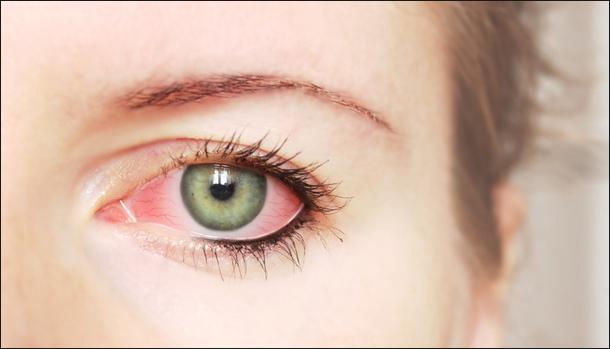 Что делать если у вас красные глаза после сна: 18 причин + когда обращаться к окулисту