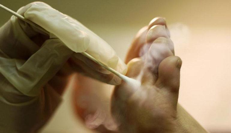 10 простых способов навсегда избавиться от сухих мозолей на ногах